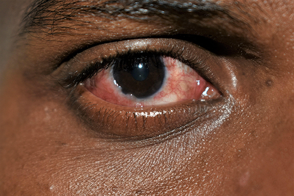 A red and gritty eye caused by conjunctivitis on dark skin