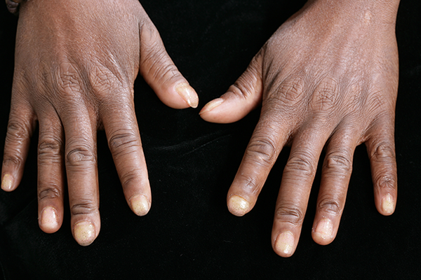 Fingertips of a person with dark skin who's affected by Raynaud's.