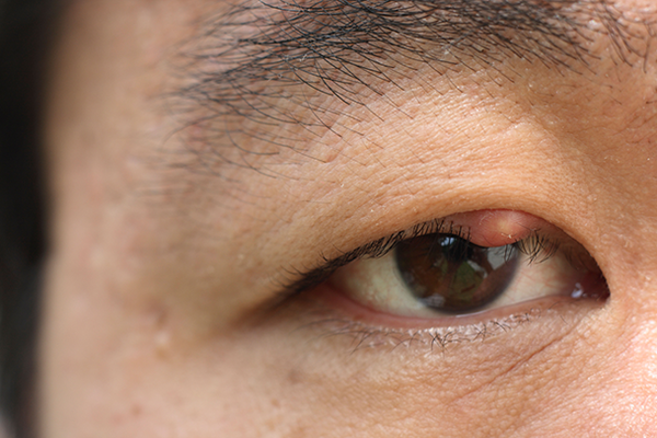 The stye is a round, slightly red lump on the upper lid by the eyelashes. The rest of the eye looks normal.