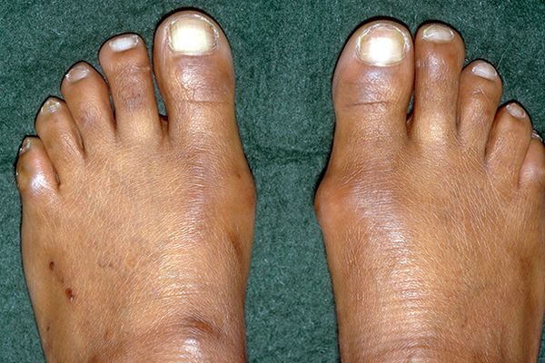 Bunions on both feet but the one on the right foot is more prominent. Shown on brown skin