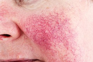 Picture of broken blood vessels on a woman's cheek caused by rosacea