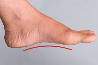 A woman's left foot with a raised area (arch) visible along the bottom of the foot