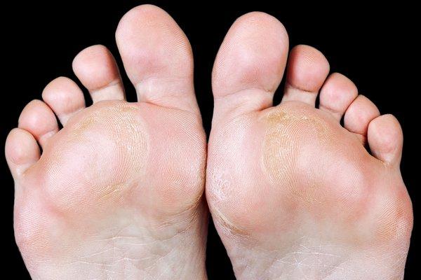 Rough callused balls of feet.