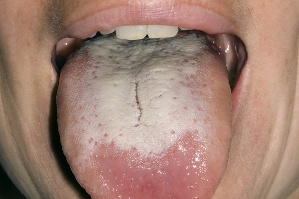 Picture of a white tongue caused by oral thrush