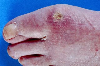 Picture of scleroderma on a foot
