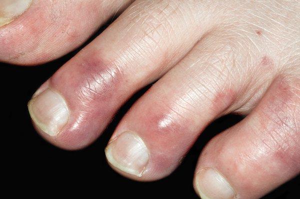 Red, swollen toes