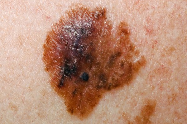 A multicoloured melanoma with uneven borders on pale skin