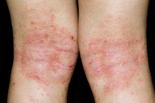 Eczema on the knees