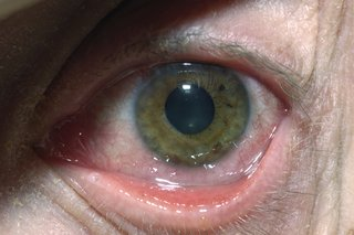 A herpes simplex eye infection can cause the eye to redden and swell