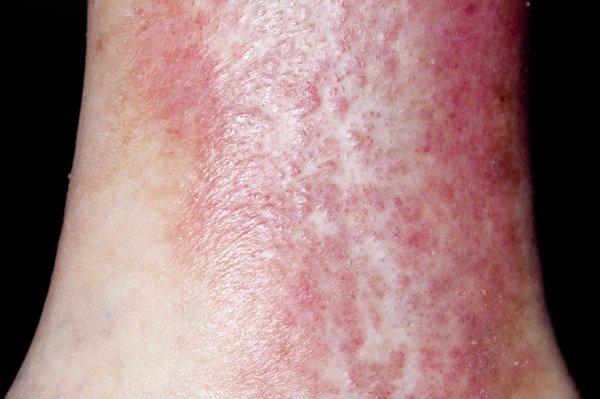 Picture of varicose eczema