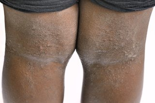 Picture of eczema on the back of the knees