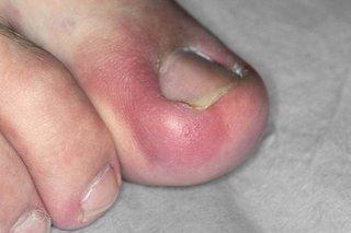 Red, swollen toe with ingrown big toenail.