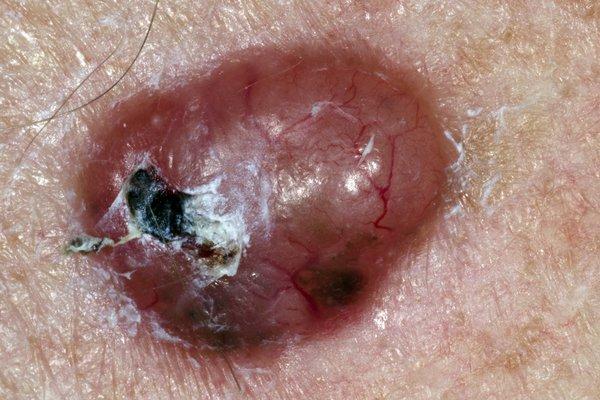 Picture of non-melanoma skin cancer