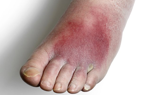 A patch of dark red skin on the top of a foot, caused by cellulitis. Shown on white skin