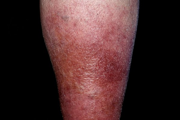 A large area of red, dry skin on the lower leg, caused by cellulitis. Shown on white skin