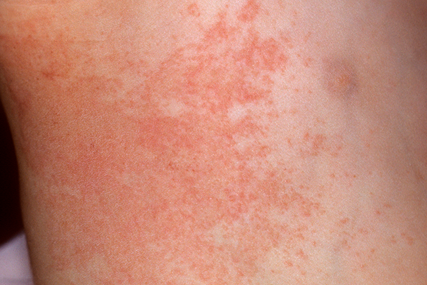 S_0221_Sudamina_blisters_heat rash_prickly heat_C0465331.png