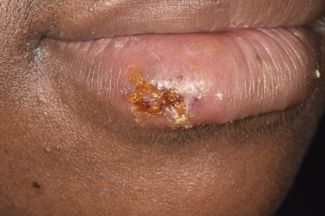 S_0720_Cold-sores-on-darker-skin_C0473050.jpg