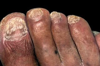 Toenails are covered in pale yellow and brown patches and lines. Shown on medium brown skin.