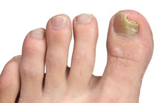 The nail on a person's big toe is yellow and crumbling. It has a piece missing over the tip of the toe. Shown on white skin.
