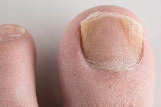 The nail on a person's big toe. The sides of the nail are yellow and the edge that's trimmed is flaky. Shown on white skin.