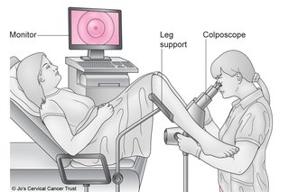 Should i avoid sex after a colposcopy