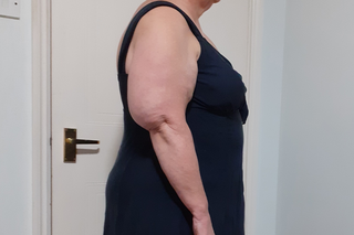 Side view of a person with an enlarged upper arm