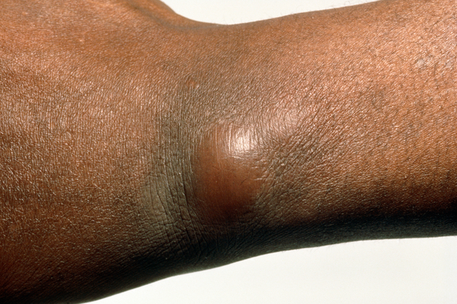 SPL_0720_Boil_in_the_skin_of_the_wrist_M1200014.png