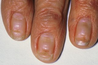 Fingernails with deep lines or grooves across them