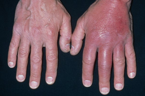 Swollen, tight, red skin on the fingers and back of 1 hand caused by cellulitis. Shown on white skin