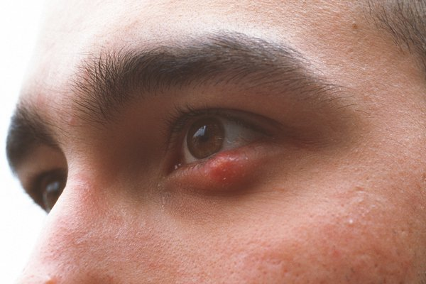 Stye on lower eyelid. It is a round, red lump by the lower eyelashes. The rest of the eye looks normal.