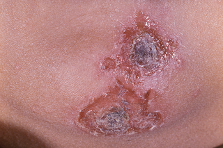Impetigo on the chin. The patches are about 2cm wide, red and golden with darker scabs in the middle. Shown on brown skin.