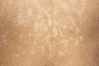Dark skin with smaller lighter patches caused by pityriasis versicolor.