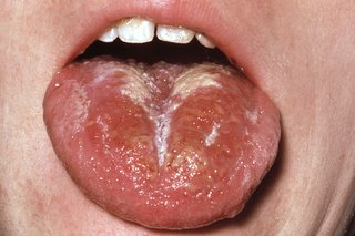 A red and swollen tongue with a white coating.
