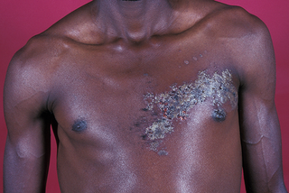 Shingles rash shown on dark brown skin. Blisters are grey and in a cluster on 1 side of a person's chest.