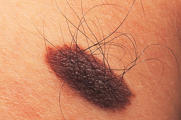 A harmless, raised, dark-coloured mole with hair growing from it