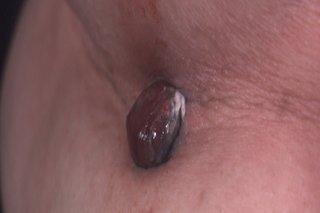 Picture of nodular melanoma.
