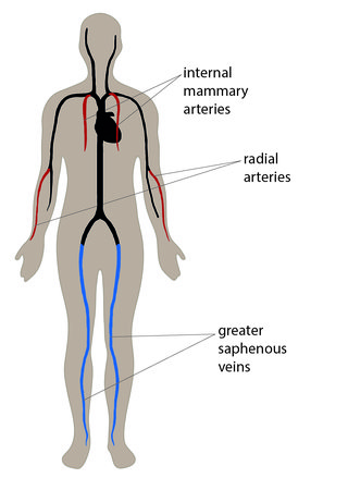 Illustrated diagram showing the location of internal mammary arteries in the chest, radial arteries in the forearms and greater saphenous veins in the legs