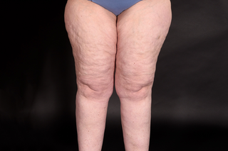 Close-up of a person's enlarged upper legs with dimpled skin