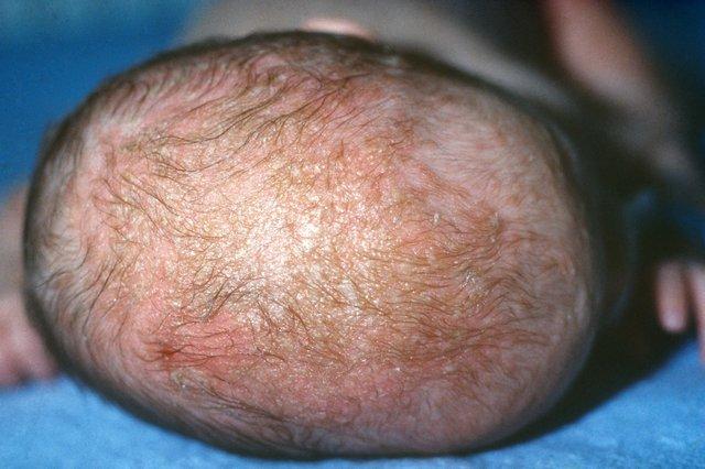 S_0219_Seborrheic_dermatitis_C0270663.jpg