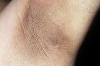 A dark patch of skin on the armpit of a person with white skin. The patch covers most of the person's armpit.