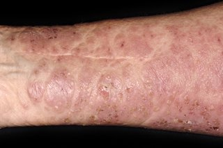 Large red, blotchy, dry rash with small scabs on the arm of a person with white skin