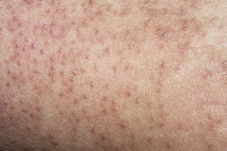 A picture of painless small red bumps on the skin..