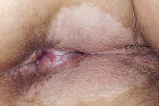 A large, discoloured, white patch of skin just below and beside the opening of the anus.