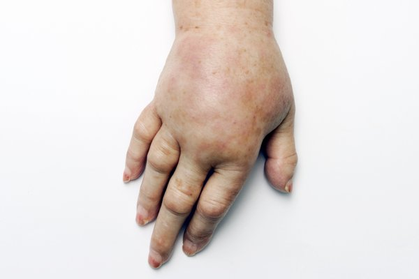 Stretched skin on the hand and arm caused by oedema