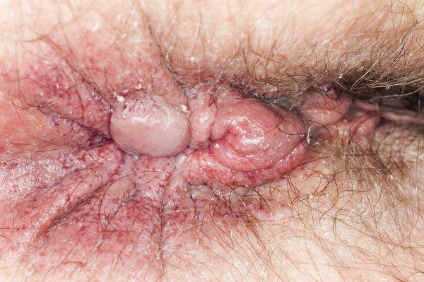 Piles (haemorrhoids) lump.