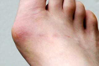 Bunion on right foot shown on white skin. The bunion appears swollen and red.