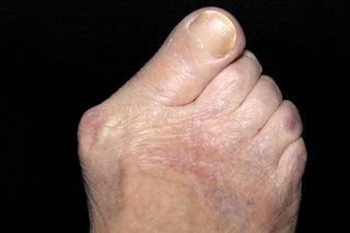 Prominent bunion on right foot and all toes pointing at 45 degree angle to the right. Shown on white skin.