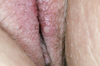 A small white blister on the lips outside the vagina