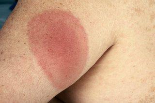 A circular red Lyme disease rash on an arm.