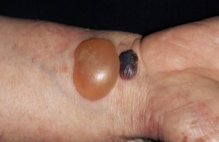 A large orange blister and a smaller, dark blister on the wrist of a person with white skin